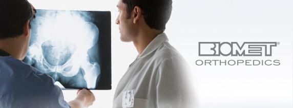 Biomet эндопротез тазобедренного сустава чья фирма боль в правом плечевом суставе причины